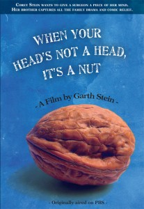 When Your Head's Not a Head It's a Nut